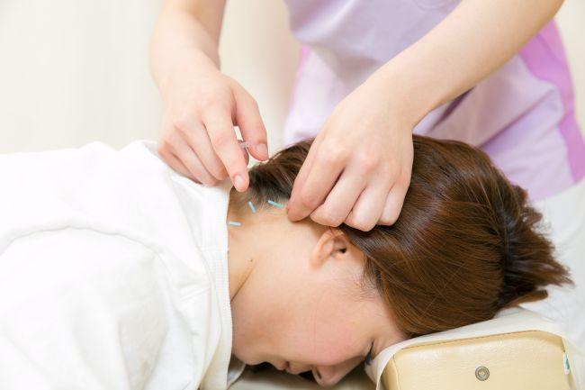 首に鍼治療